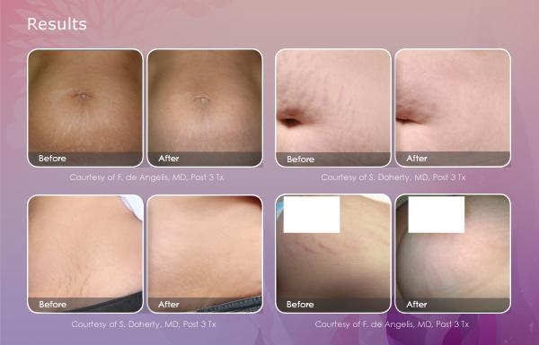 Laser Stretch Mark Removal   Eternal Skin Care