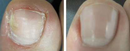 How To Reduce Or Eliminate Nail Fungus Eternal Skin Care